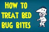 Gewusst wie: behandeln von Bettwanzen gebissen | Behandlung von Bisse von Insekten und Insekten